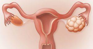 Склерокистозные яичники