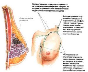 От чего бывает рак молочной железы