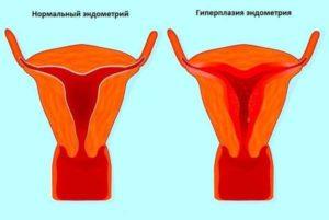 Как остановить кровотечение при эндометриозе