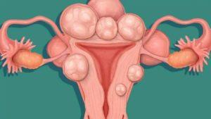 Как в домашних условиях вылечить миому матки без операции