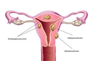 Интрамуральная миома матки
