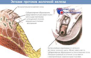 Расширенные протоки молочной железы