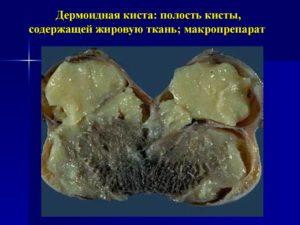 Киста дермоидная яичника операция