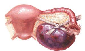 Миостимуляция при кисте яичника