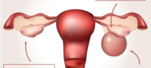 Киста левого яичника при беременности