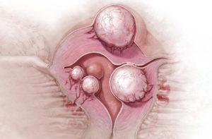 Боли после удаления миомы матки