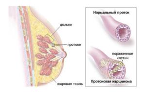 Карцинома молочной железы что это такое и сколько проживет человек