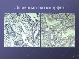 Патоморфоз 4 степени при раке молочной железы