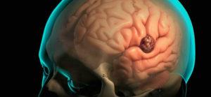 Миома головного мозга что это такое