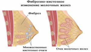 Фиброзно кистозные изменения молочных желез что это такое