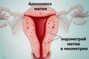 Признаки миомы матки в сочетании с эндометриозом