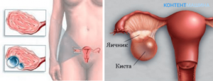 Двухкамерная киста левого яичника