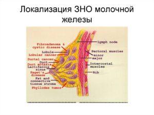Зно молочной железы