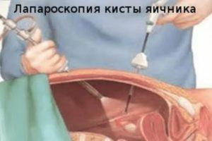 Аваскулярная киста яичника что это