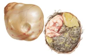 Тератома яичника что это такое