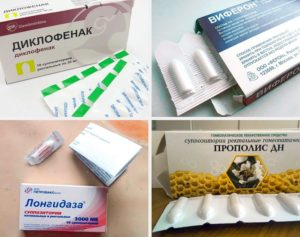 Свечи противовоспалительные в гинекологии при эндометриозе