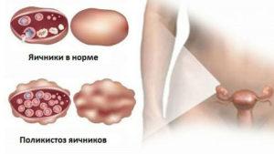 Что нельзя при поликистозе яичников
