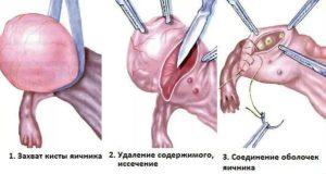 Гистология кисты яичника после операции