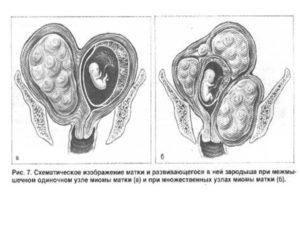 Беременность и миома матки малых размеров
