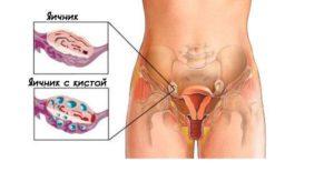 Может ли кишечник давить на яичник