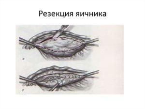 Резекция яичника