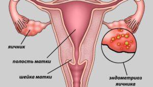 Спринцевание при эндометриозе матки