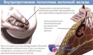 При надавливании на молочную железу выделяется жидкость