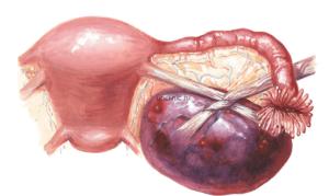 Вылущивание кисты яичника