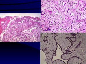 Интраканаликулярная фиброаденома молочной железы