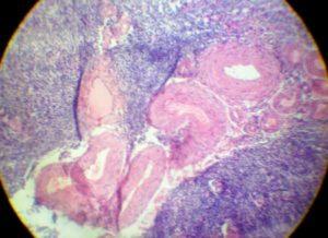 Гиалиноз желтого тела яичника