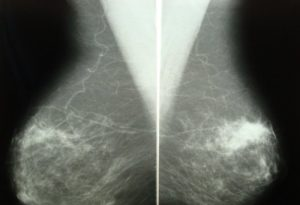 Фиброза молочной железы что это такое