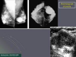 Филлоидная опухоль молочной железы