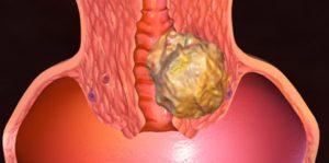 Злокачественная миома матки