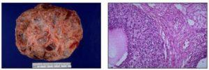 Гранулезоклеточная опухоль яичника