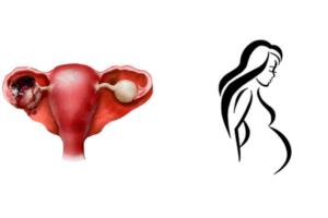 Беременность после апоплексии яичника
