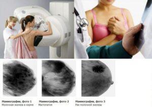 Диффузно фиброзные изменения молочных желез