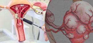 Множественная интерстициальная миома тела матки