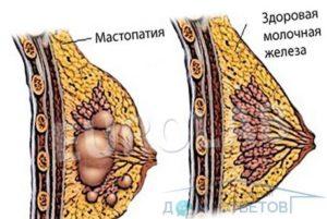 Бугристое уплотнение в молочной железе