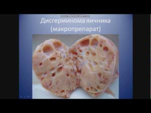 Дисгерминома яичника прогноз