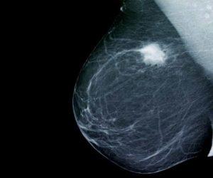 Маммография рак молочной железы