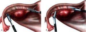 Лечение оперативное кисты яичника