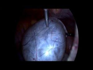 Лапароскопия параовариальной кисты яичника