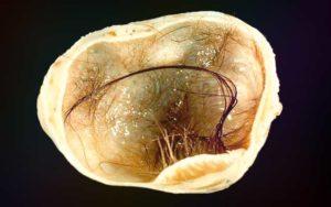 Зрелая тератома яичника