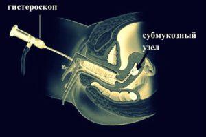 Гистероскопия матки при миоме