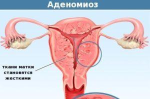 Миома матки малых размеров в сочетании с аденомиозом