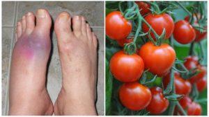 Почему нельзя есть помидоры при миоме