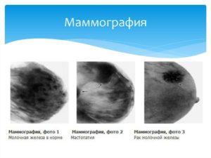 В какой период делают маммографию молочных желез