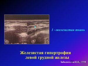 Разрастание железистой ткани молочной железы