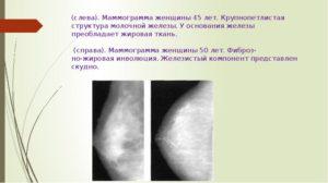 Железистый компонент молочной железы что это такое