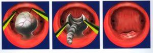 Резектоскопия миомы матки